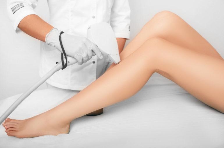 laser epilation, hair removal on legs